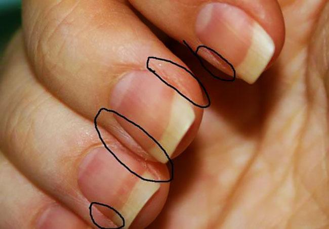 Кожа вокруг ногтей рук