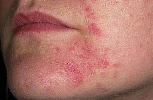 Симптомы атопии кожи