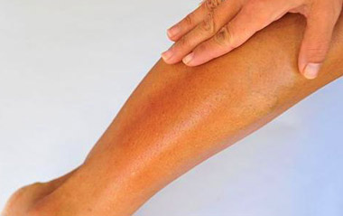 Сухая раздраженная кожа ног