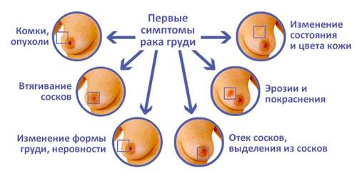 Симптомы ракка груди