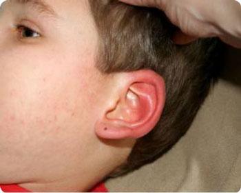 Покраснения ушей при аллергии