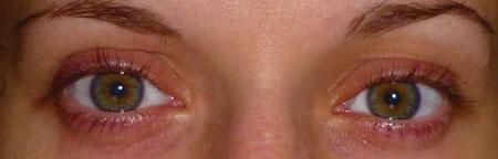 Причины шелушения кожи на бровях