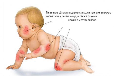 Причины сухости кожи у детей