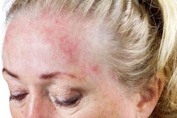 Шелушение кожи на лбу