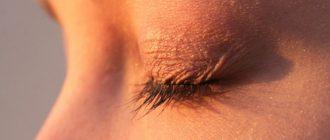 Шелушение вокруг глаз