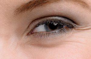 Сухость кожи вокруг глаз