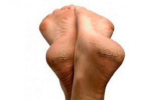 Трещины и шелушение на пятках
