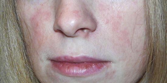 Воспаление копчика у женщин и мужчин: симптомы и лечение