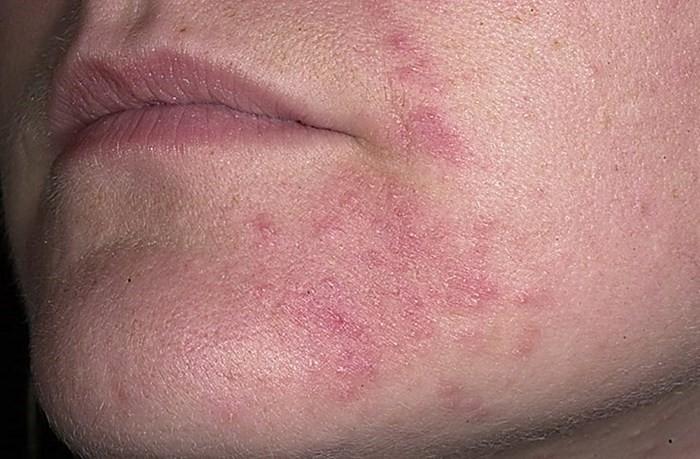Раздражение вокруг рта