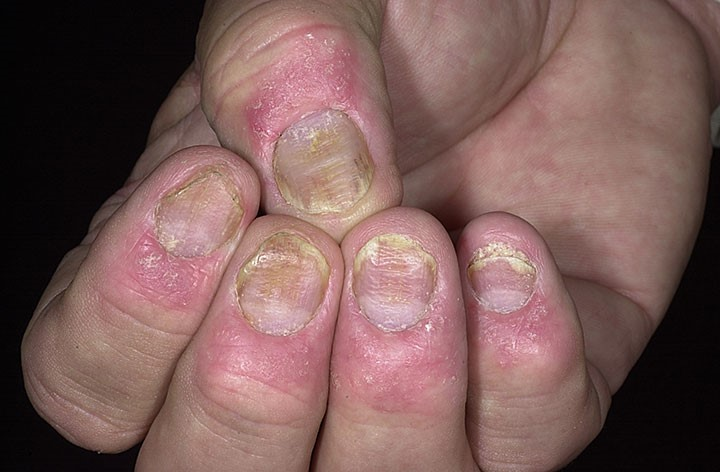 Псориатическое поражение ногтевой пластины