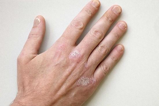 Симптомы псориаза на ладонях