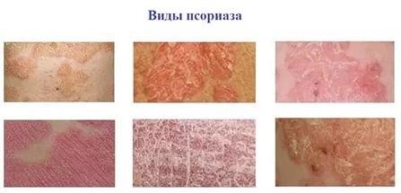 Виды псориаза