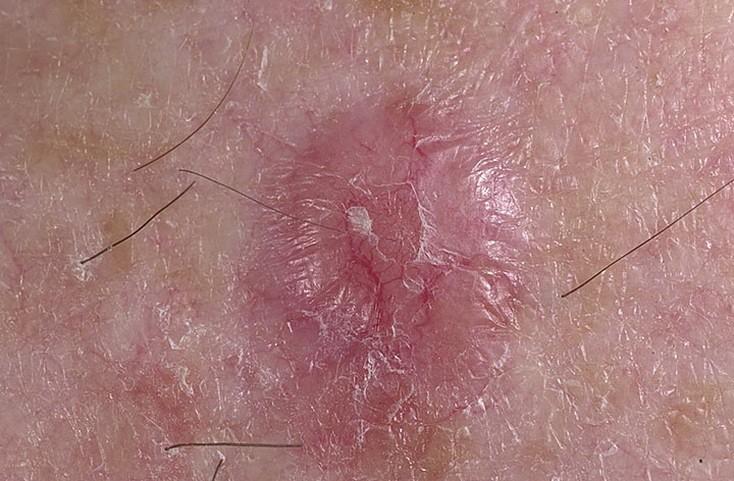 Совместимость псориаза и рака кожи