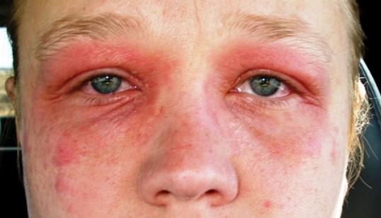 Как лечить псориз на глазах