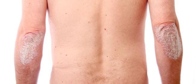 Симптомы псориаза первой стадии