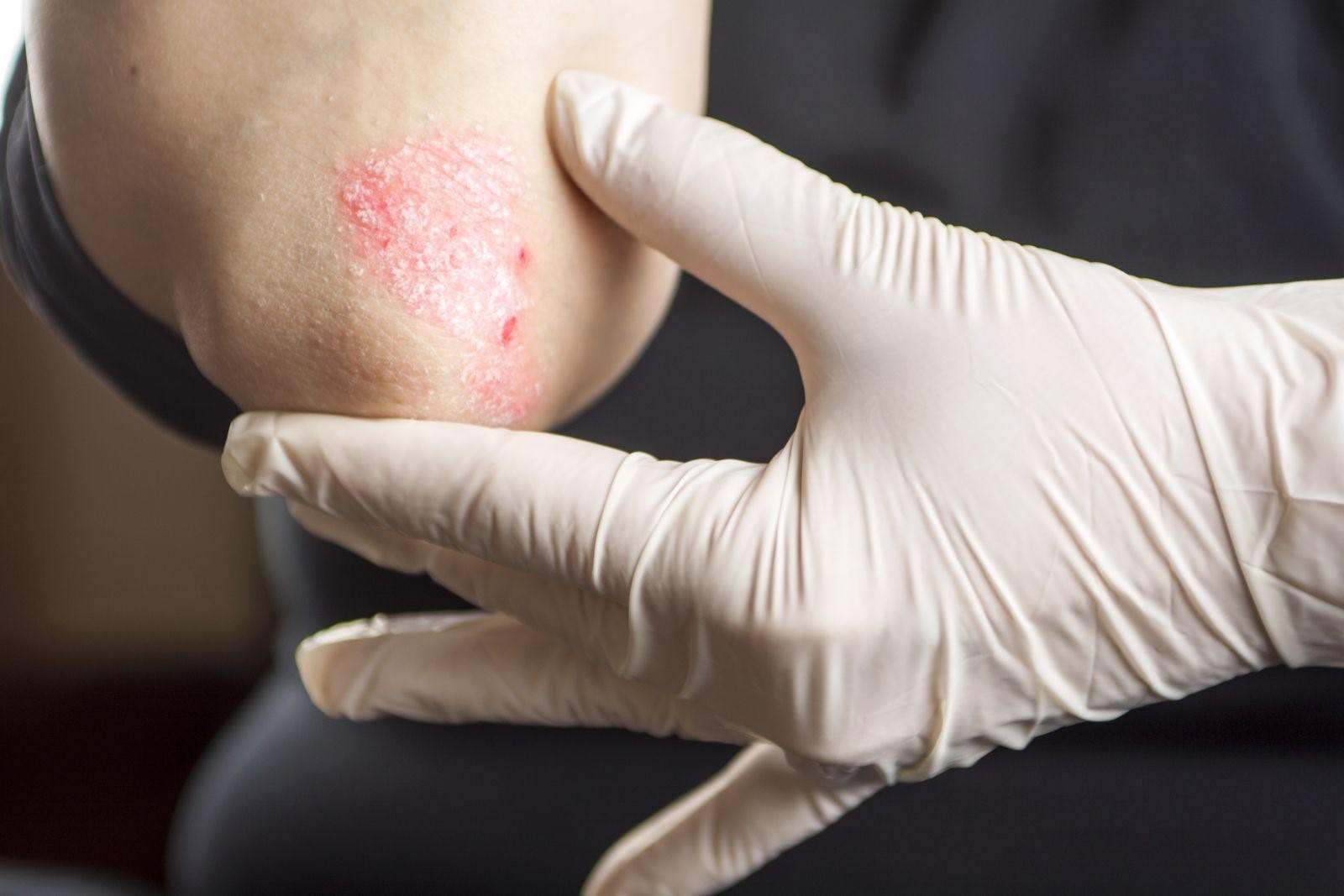 Отличие псориаз от дерматита