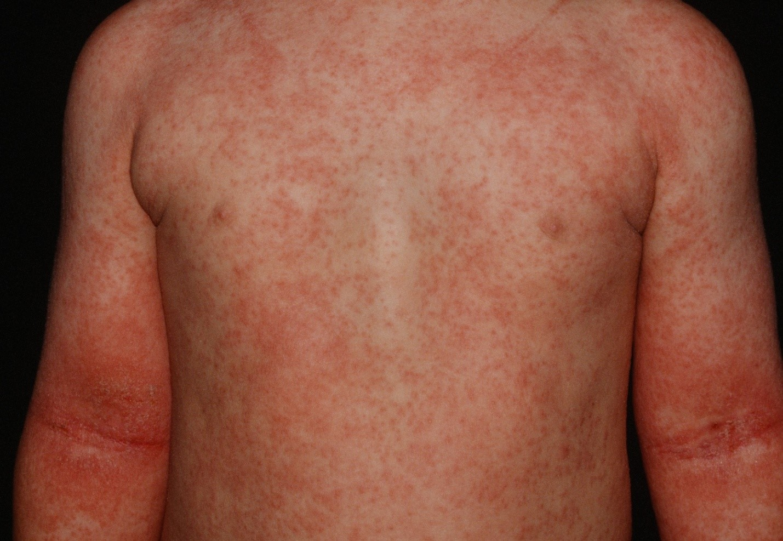 Псориаз или дерматит
